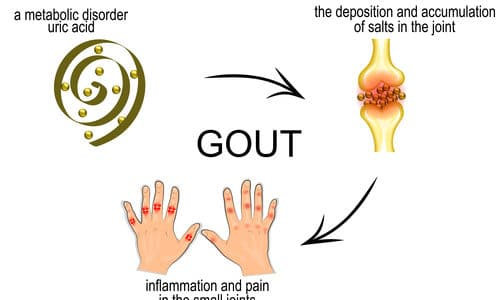 Definition of Gout