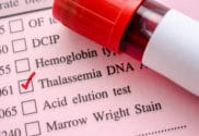 Gout and Thalassemia