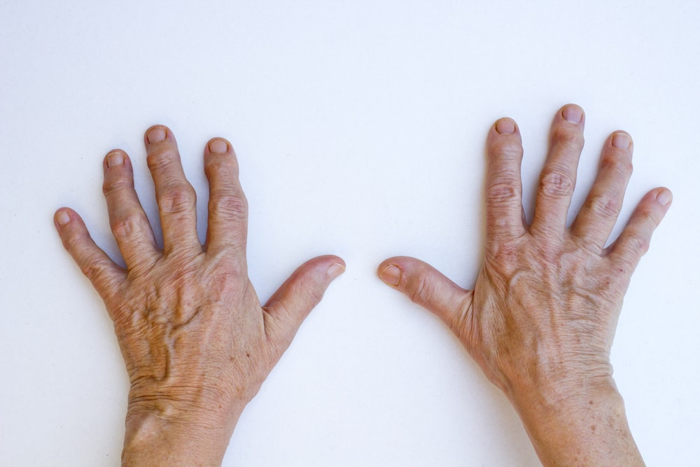 Gout can lead to arthritis