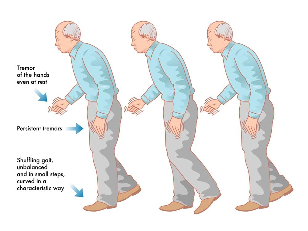 Parkinson's Disease and Gout