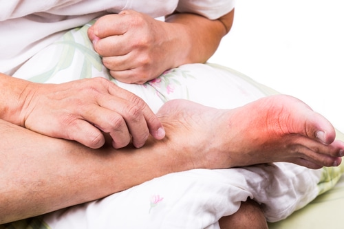Painful Gout attack image